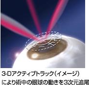 laser01
